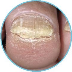 thickened toenail-01