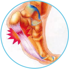 General Foot Pain – Plantar Fasciitis