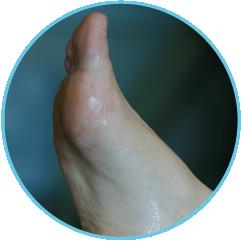 Sweaty Feet and Foot Odour