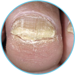 Nail Problems - Stockport Chiropody